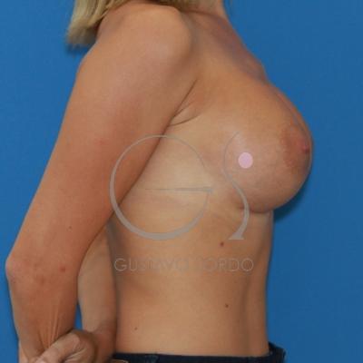 Implantes redondos para conseguir un resultado natural