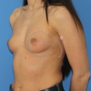 hipoplasia mamaria