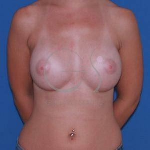 Después del aumento de mamas