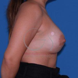 Ptosis mamaria después del aumento de pecho