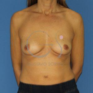 Antes del aumento mamas