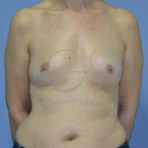 Antes del aumento de mamas con volumen significativo