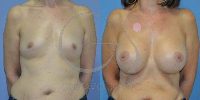 Aumento de mamas con volumen significativo: Fotos antes y después
