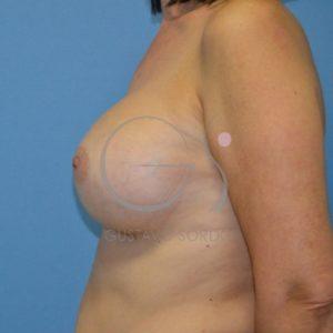 Después del aumento de mamas con volumen significativo