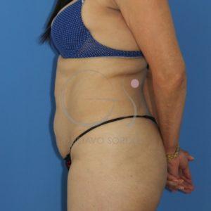 Dehiscencia de rectos abdominales. Perfil
