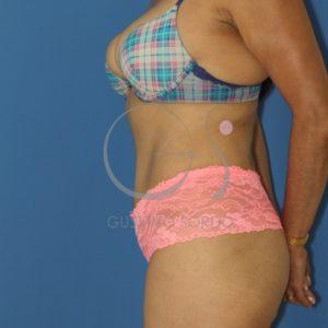 Dehiscencia de rectos abdominales