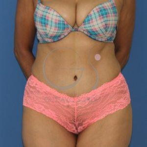 Dehiscencia de rectos abdominales. Frente