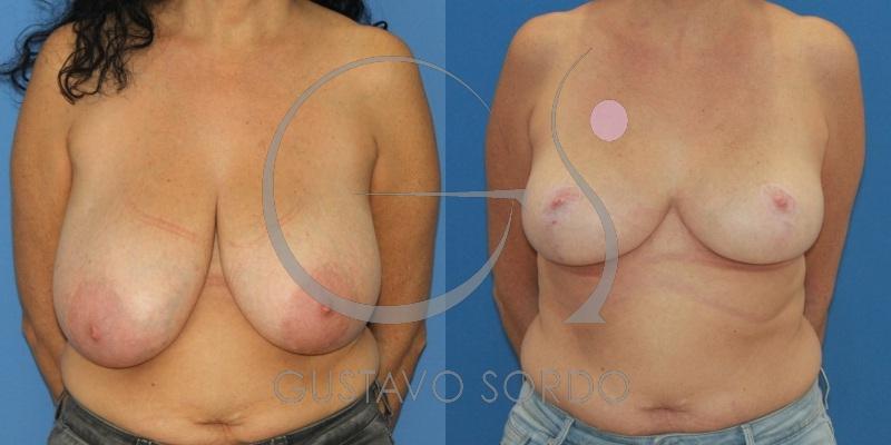 Reducción mamaria con patrón en T. Paciente con hipertrofia mamaria [FOTOS]