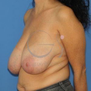 Antes de la reducción mamaria
