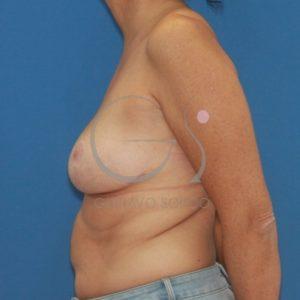 Después de la reducción mamaria con patrón en T