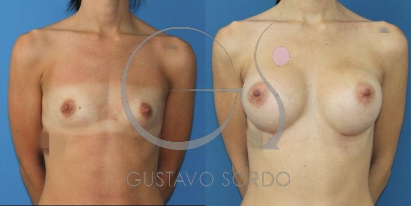 Prótesis anatómicas de 390cc. Fotos de un aumento de pecho.