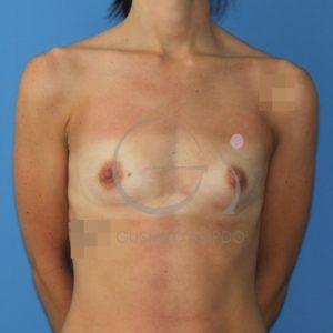 Antes de poner prótesis anatómicas