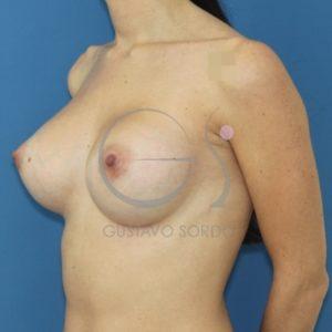 Después de poner prótesis anatómicas