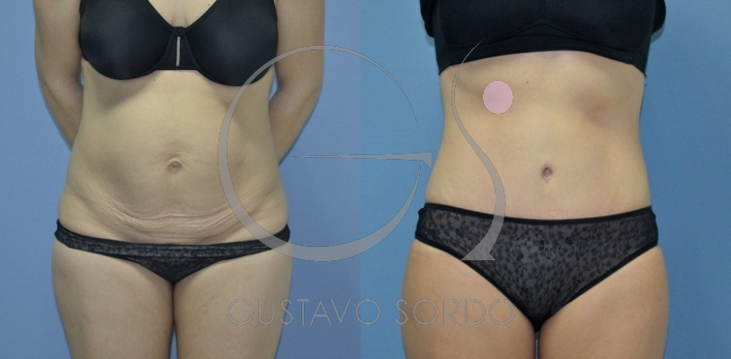 Abdominoplastia post-parto con hernia umbilical [FOTOS]