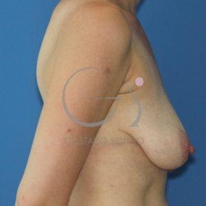 Antes de cirugía integral postparto