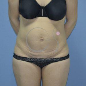 Antes de abdominoplastia post-parto