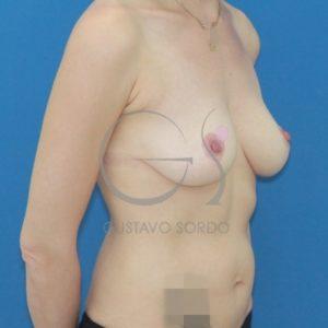 Después de cirugía integral postparto