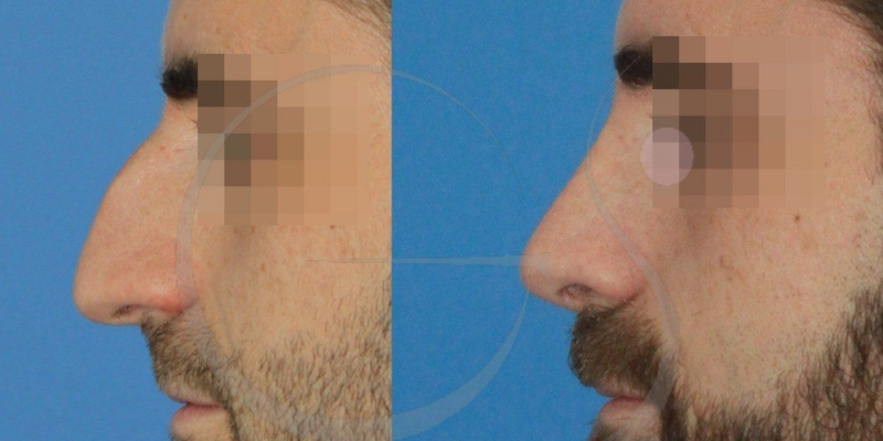 Caso real de rinoplastia practicada a un varón de 33 años [FOTOS]