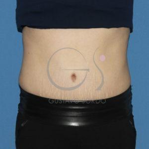 Después de la recuperación de la figura abdominal