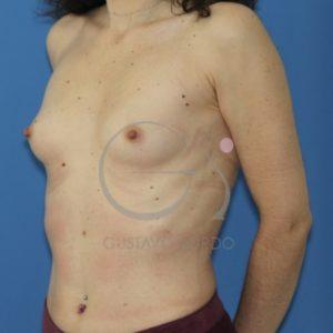 Antes de las prótesis anatómicas