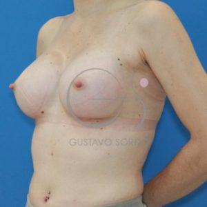 Después de las prótesis anatómicas