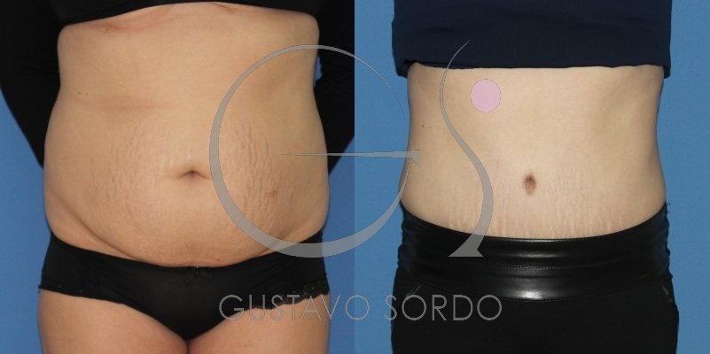Recuperación de figura en la zona abdominal a través de abdominoplastia