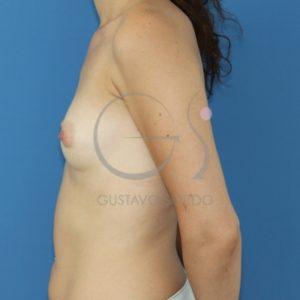 Aumento de pecho en mujer de 31 años, antes