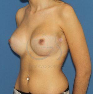 Después de las prótesis redondas