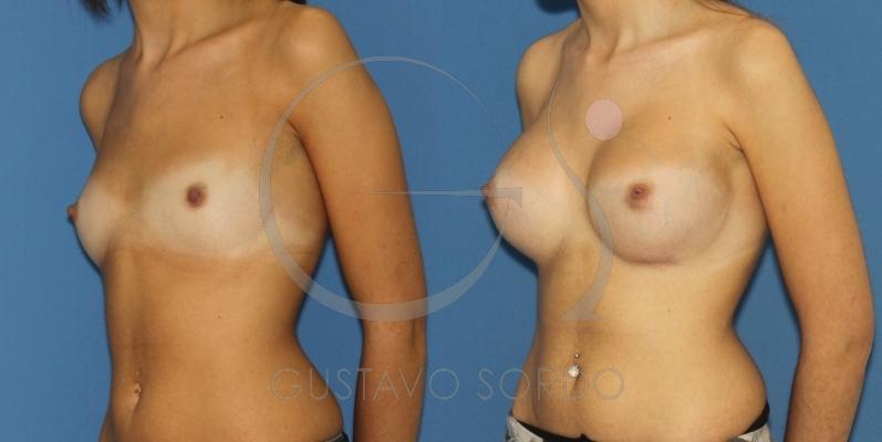 Prótesis redondas para compensar polos en un aumento de mamas