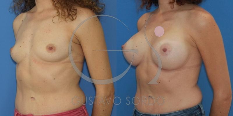 Corrección del déficit de volumen mamario en el polo superior