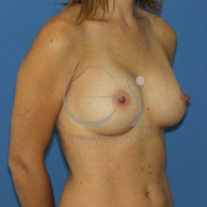 Prótesis high para aumento de pecho