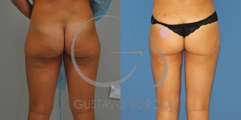 Eliminación de acúmulos de grasa y mejora del contorno corporal