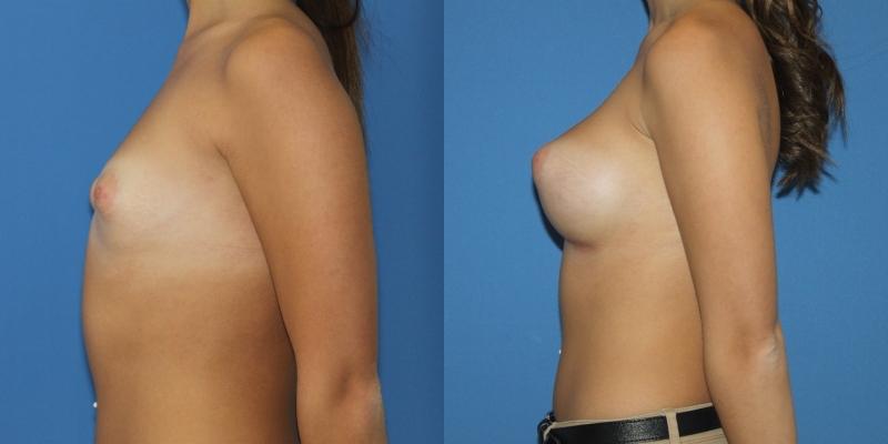 Paciente con mamas tuberosas de grado I-II corregidas con anatómicas