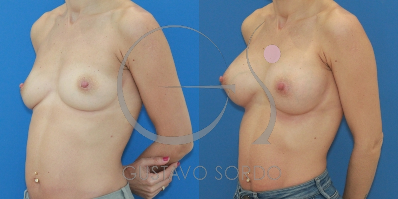 Mujer deportista: Aumento de pecho acorde a su tórax