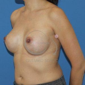 Después del aumento de pecho con prótesis anatómicas de 395cc
