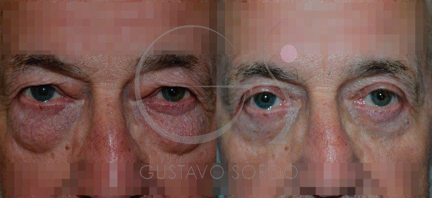Blefaroplastia en varón de 60 años [FOTOS]