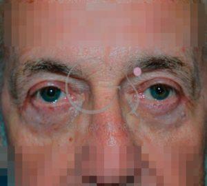 Después de la blefaroplastia en varón de 60 años.