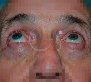 Después de la blefaroplastia
