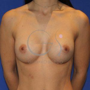 Después de la corrección del escote con implantes redondos