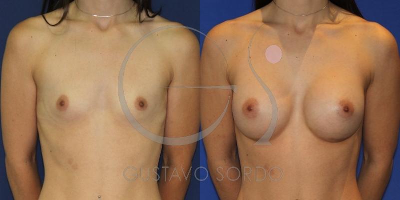 Corrección de escote con implantes redondos