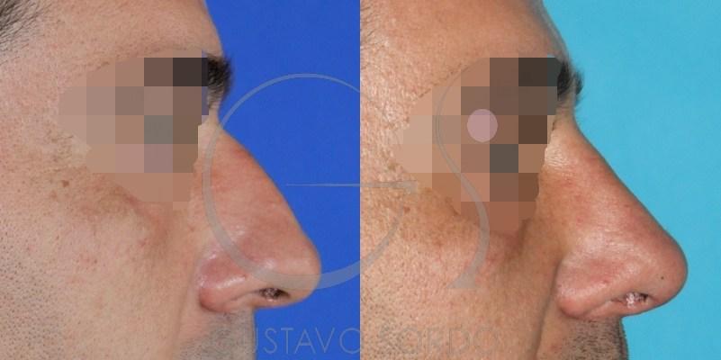 nariz masculina
