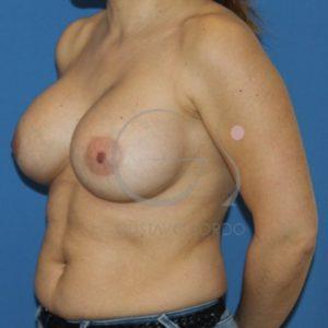 Después del aumento de pecho mujer de 38 años