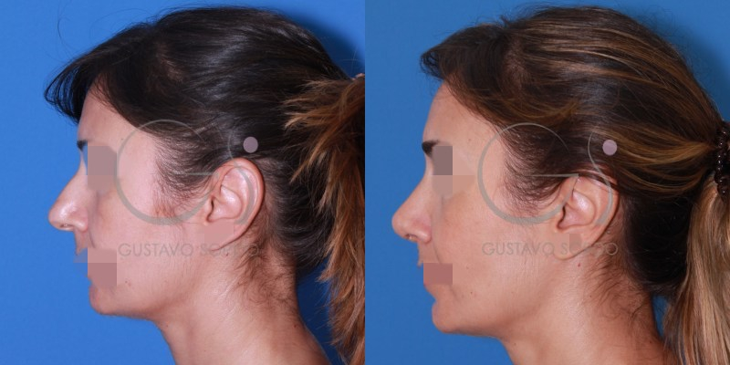 Rinoplastia en nariz con punta globulosa [FOTOS]
