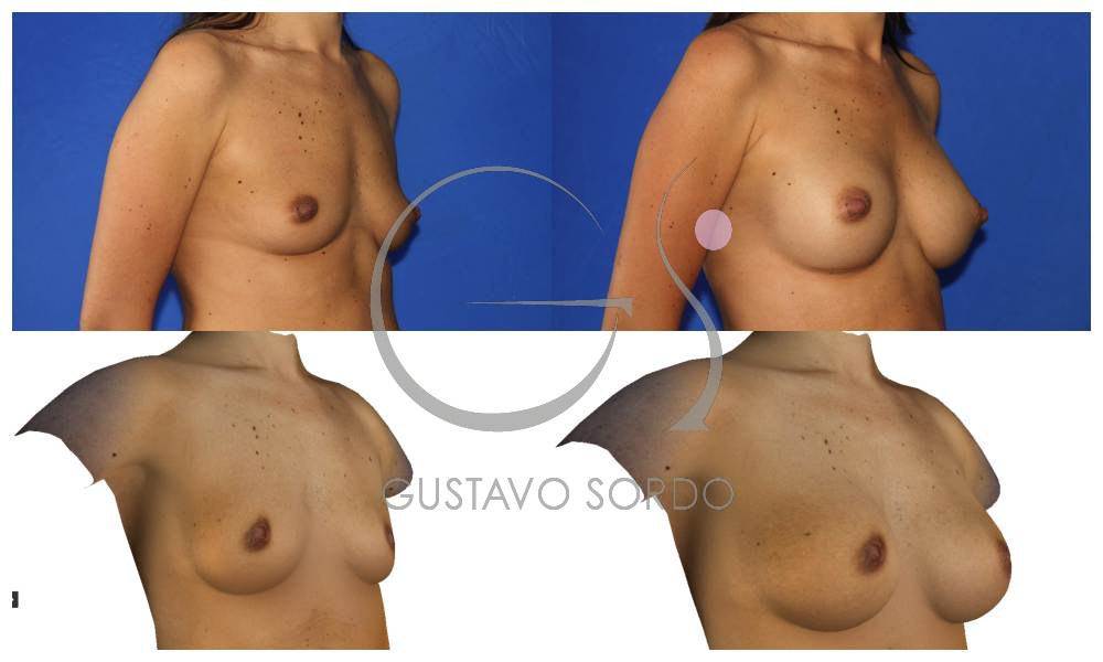 ¿Ayudan los simuladores tridimensionales en la elección del implante mamario?
