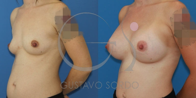 Aumento de pecho con prótesis redondas