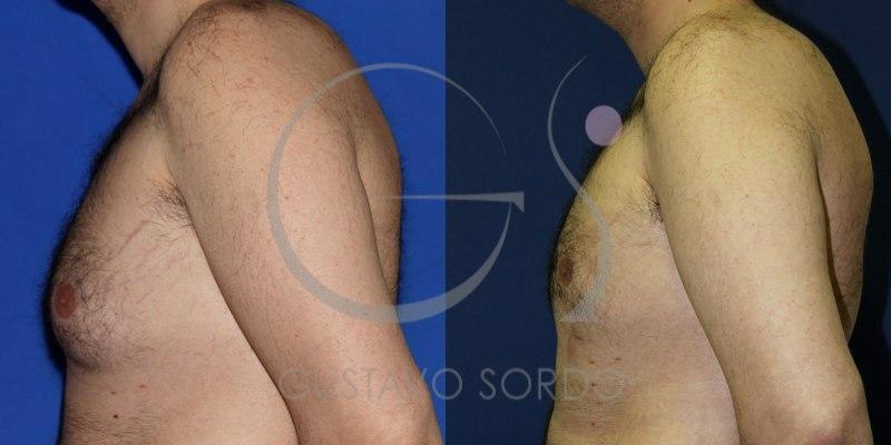 Antes y después de una ginecomastia