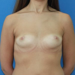 Antes del aumento de pecho con prótesis redondas