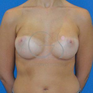 Después del aumento de pecho con prótesis redondas