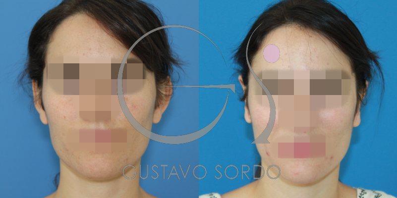 Otoplastia en mujer de 32 años: fotos antes y después
