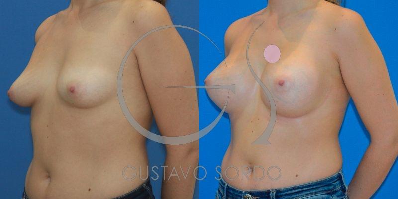 Aumento de pecho en mamas tuberosas. Prótesis anatómicas 375cc